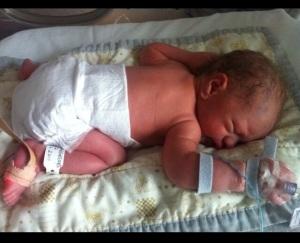 Born premature at 33 weeks
